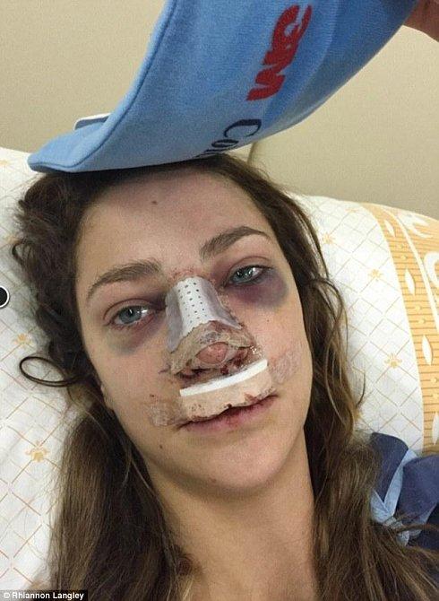 Rhiannon pár hodin po operaci.