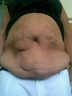 """Paní Margita: """"Shodila jsem 60 kilo, jenže moje břicho je úplně zdevastované."""""""