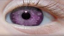 Fialová barva duhovky je velmi vzácná a vyskytuje se pouze u původně evropské populace