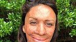 Turia Pitt měla popáleniny na 64 % těla, musela nosit masku a dodnes má trvalé následky. Přežila zázrakem.