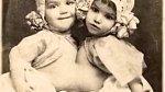 Guadalupe a Josephnie Hinojosa - siamská dvojčata, která rodiče prodali do cirkusu.