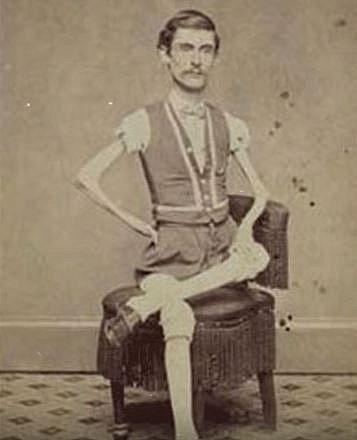 Vystupoval v cirkusu, kde divákům ukazoval své doslova na kost vyhublé tělo. Když ve svých 46 letech zemřel, vážil pouhých 19,5 kg.