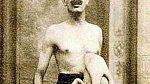 Parazitické dvojče vykazovalo život, hýbalo končetinami a na ultrazvuku byla v oblasti břicha Jeana patrná také hlava. Jean byl ženatý a měl čtyři zdravé děti.