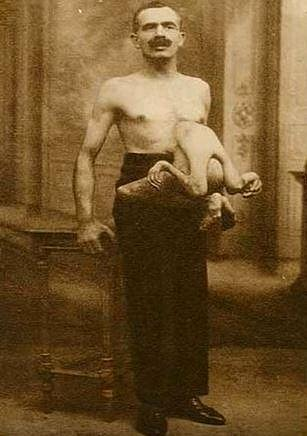 Jean Libbera - Muž se dvěma těly. Jeanovi z těla vyrůstalo tělo jeho dvojčete, které rodiče pojmenovali Jacques.