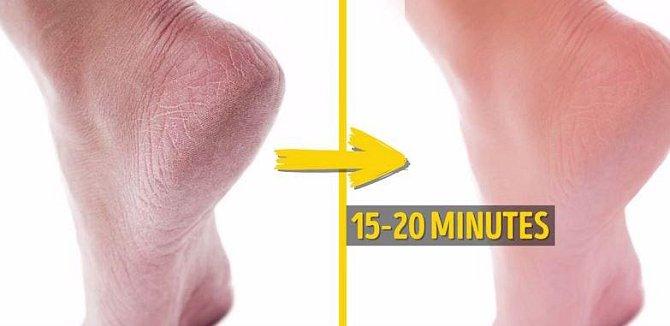 Hrubá kůže na patách už vás nemusí trápit, když na nohy použijete tuto směs. Smíchejte 2 hrnky teplé vody s půl hrnkem jedlé sody a 1 hrnkem octa. Směs naneste na nohy a nechte až 20 minut působit.