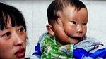 Rozštěp tváře - v roce 2010 se v Číně narodil chlapec s unikátní vadou, vypadá jako by měl dvě tváře. Jde jen o fyzické postižení, po mentální stránce je zcela v pořádku. Až doroste do určitého věku, podstoupí složitou opera...