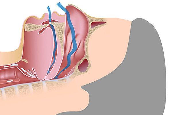 Při apnoe se na určitou dobu stanou dýchací cesty zcela neprůchozí.