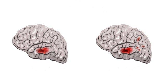 Na obrázku vlevo primární nádor, vpravo metastázy.