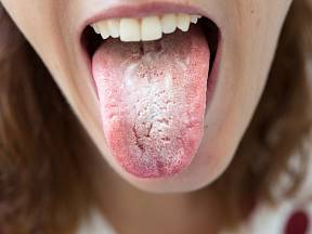 Bílý povlak na jazyku může signalizovat kvasinkovou infekci