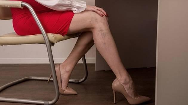 Křečové žíly jsou běžným problémem, při kterém se abnormálně zvětšené žíly začnou objevovat těsně pod povrchem kůže.