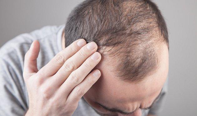 Vlasy posílíte pomocí bylinek