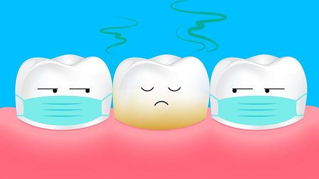 Je až 80% šance, že zápach z úst způsobuje jeden neošetřený zubní kaz.