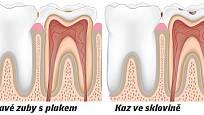 vznik zubního kazu