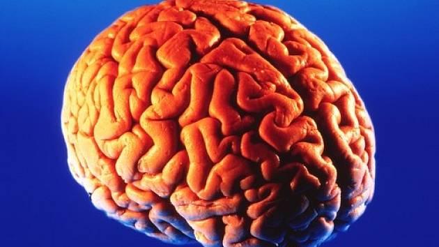 Lidský mozek (encephalon) je řídící a integrační orgán nervové soustavy člověka.