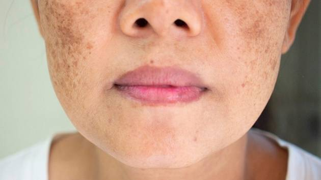 Pigmentové skvrny se mohou odstranit i v domácích podmínkách.