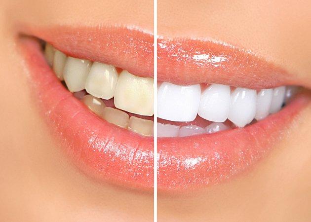 Bílé zuby působí zdravějším dojmem.