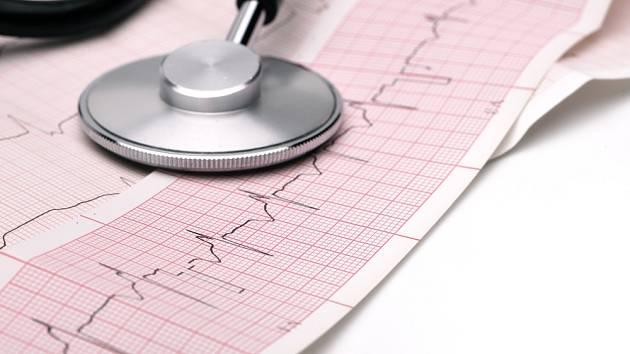 Fonendoskop a záznam EKG.