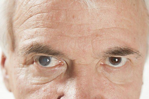 šedý zákal oční kapky nevyléčí