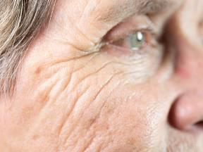 Stařecké skvrny se objevují nejčastěji na rukou, obličeji a v dekoltu
