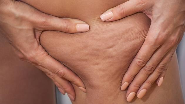 Celulitida se nejčastěji projevuje hrbolatou pokožkou na stehnech.