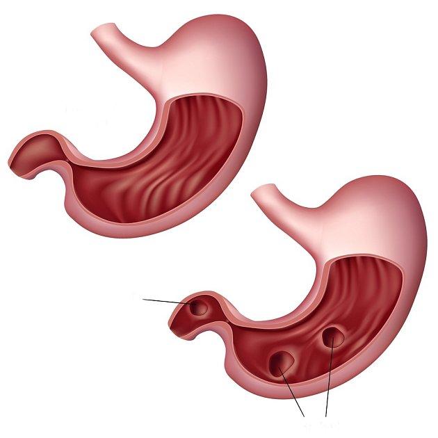 Vlevo zdravý žaludek, vpravo dole peptické vředy.