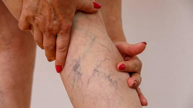 Varixy trápí celou polovinu žen staršího věku.