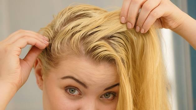 Jedlá soda funguje zázračně na mastné vlasy.
