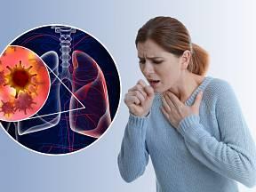 Příznaky rakoviny plic bychom neměli podceňovat.