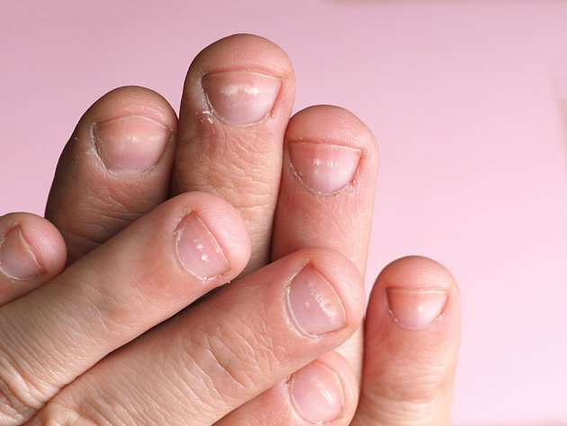Bílé skvrny na nehtech mohou být zapříčiněny nedostatkem vápníku nebo zinku