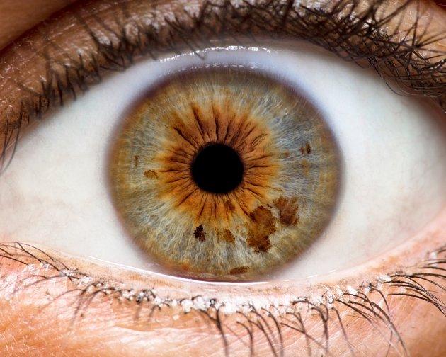 Iridologie se zabývá  diagnózou zdravotního stavu jedince podle obrazu duhovky jeho oka.