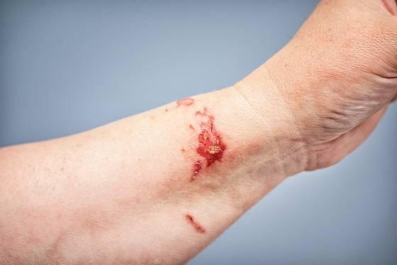 Kontaktu kůže s třemdavou bychom se měli vyhýbat hlavně za slunečních dní.