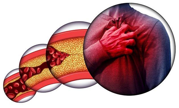 Příčinou srdečně–cévních onemocnění většinou bývá ateroskleróza, kornatění cév.