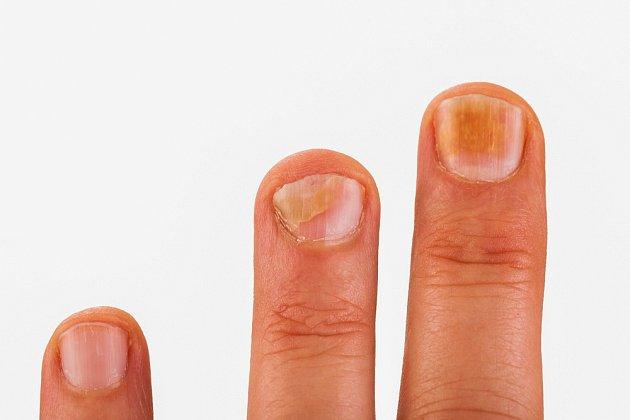 Velký pozor je třeba věnovat i plísním nehtů