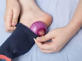 Cibuli k chodidlu připevníme např. pomocí ponožky.
