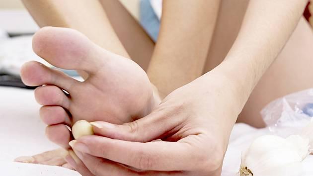 Česnek je používán na kožní problémy doslova věky. Působí aktivně proti virům, bakteriím i plísním.