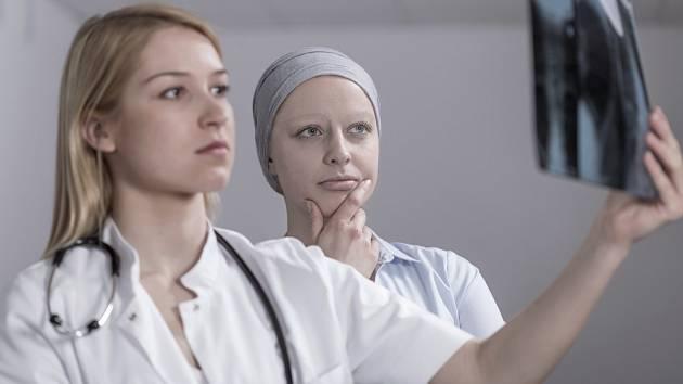 Pro diagnostiku metastáz se používají nejčastěji zobrazovací vyšetření, například rentgen.