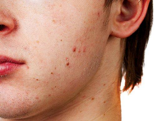 akné trápi hlavně děti v pubertě