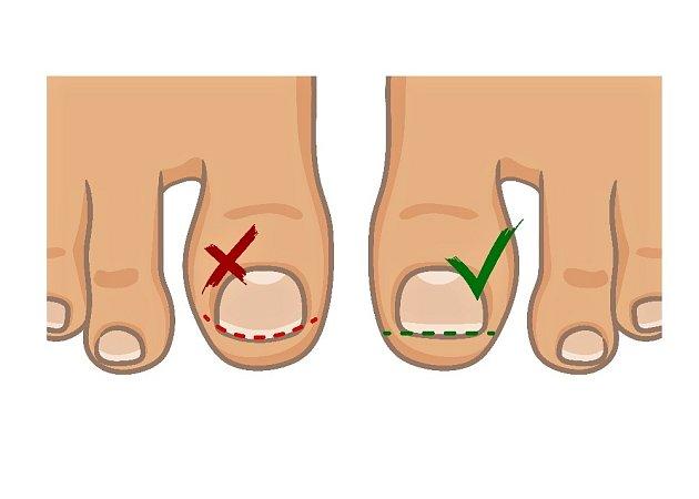 Nehty na nohou bychom měli stříhat rovně.