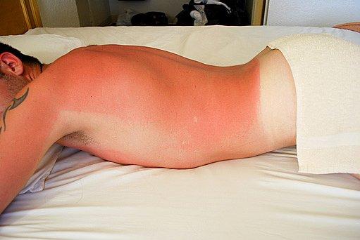 z přílišného pobytu na slunci můžete dostat úžeh nebo úpal