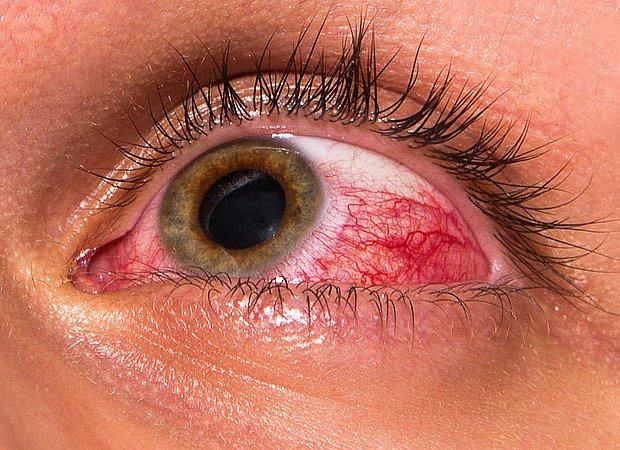V oku je vysoký tlak, který poškozuje zrakový nerv