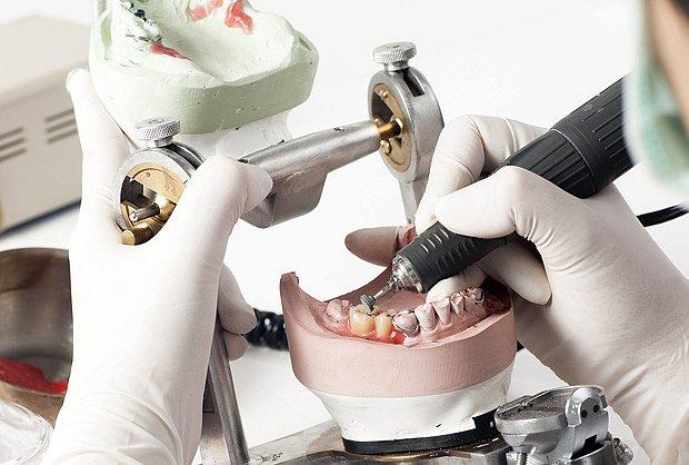 Výroba zubní protézy