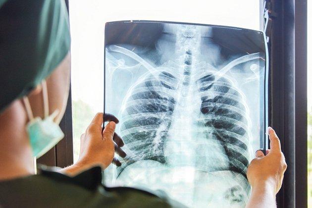S určením diagnózy pomáhá lékařům rentgen plic.