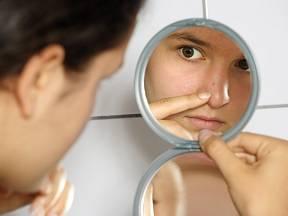 Akné se hojně vyskytuje na tváři.