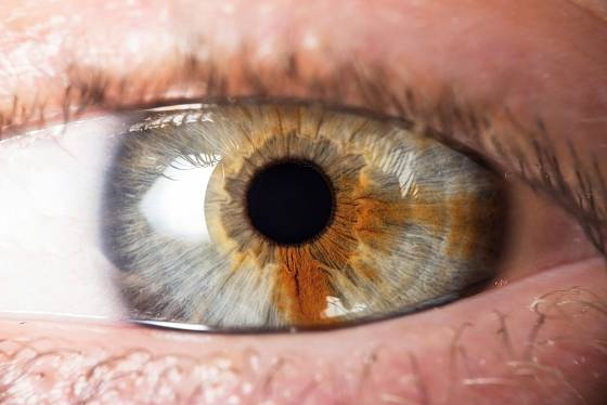 Zbarvení oční duhovky nebývá vždy pravidelné.