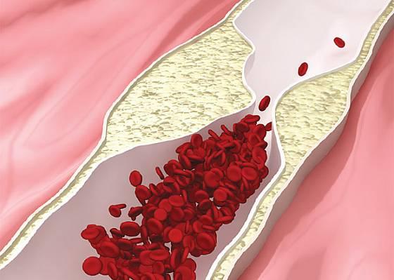 cholesterol ucpává cévy