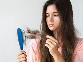 Vypadávání vlasů je naprosto přirozené
