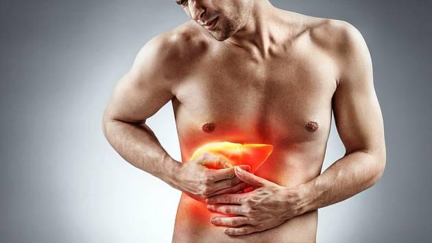 Cirhóza jater může vést až k nádorovému onemocnění jater.