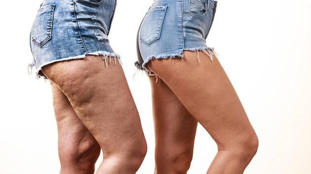 Celulitida nebývá právě ozdobou ženského těla.