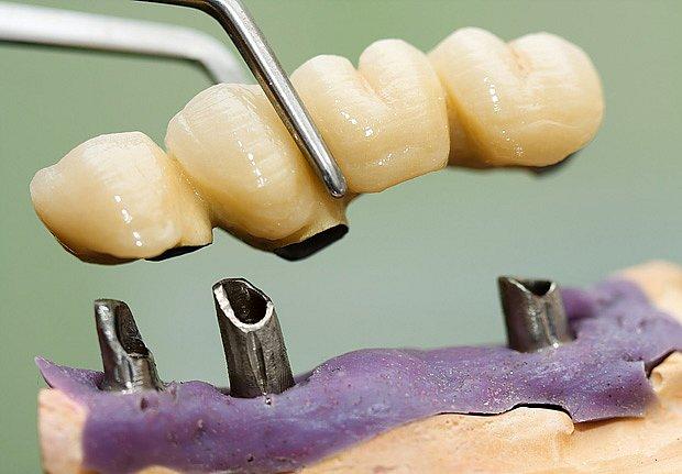 Zubní náhrada