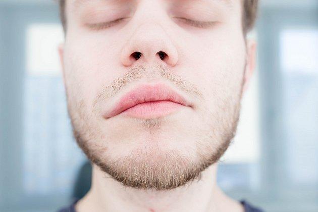 Jedním z příznaků mozkové mrtvice je asymetrie obličeje